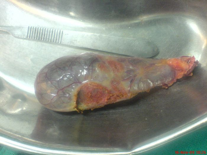 Specimen of Gallbladder After Laparascopic Cholecystectomy