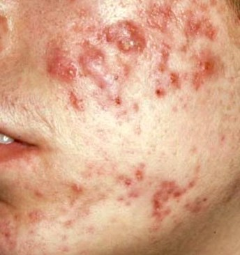 Acne Cysts and fistula