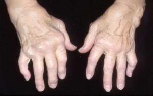 Hand Deformity in RA