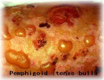 pemphigoids