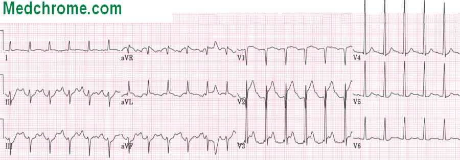 Myocardial Infarction Ecg. ECG-the earliest sign is