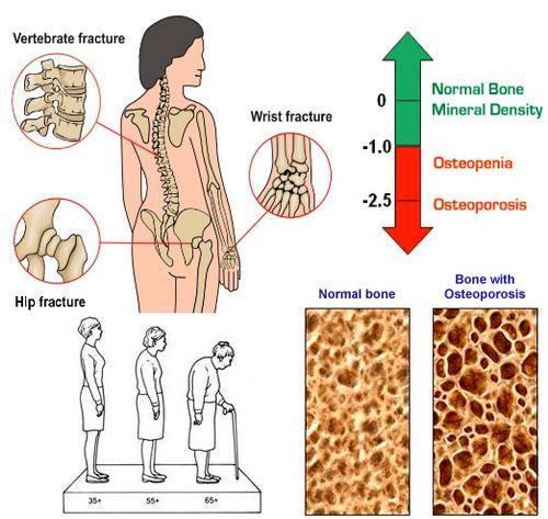 serum testosterone in female