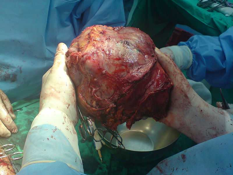 Hepatocellular Carcinoma Or Liver Cancer