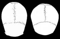 dolichobrachy Cephalic Index