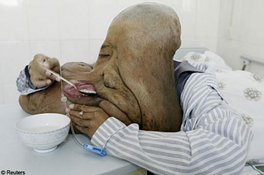 Elephant Man Disease in China