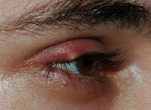 Stye with Yellow pus point