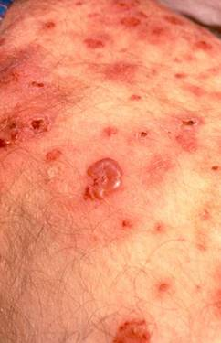 vesiculobullous rashes