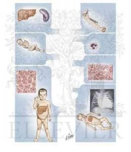 von Gierke's disease