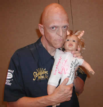 Celebrity With Disease: Michael Berryman has Ectodermal