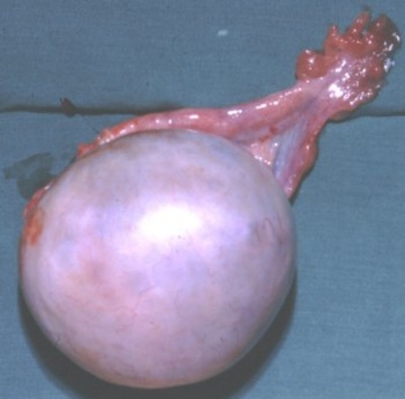 ovarian cyst management