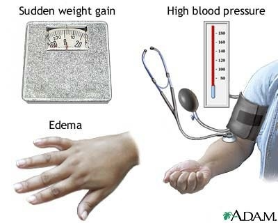 Complications Of Hypertension. Types of hypertension in