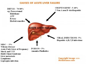 fulminant hepatic failure
