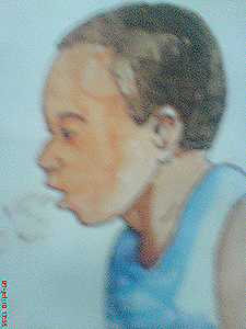 Respiratory disease, pneumonia, HMG, ministry of health and population