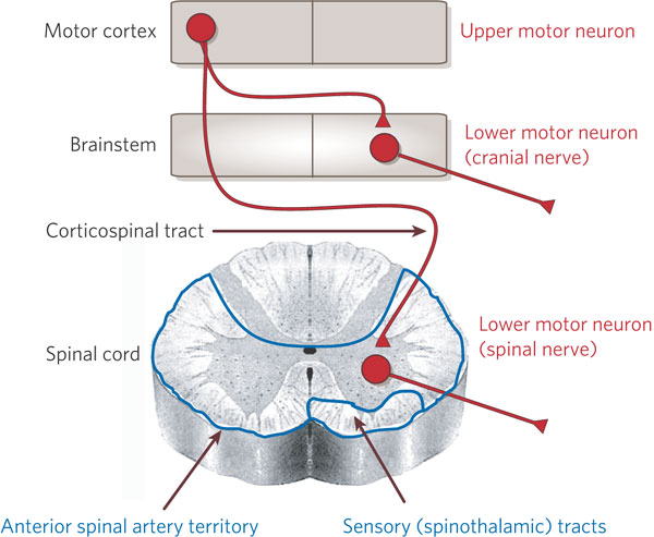 Lesions of upper motor neurons and lower motor neurons What is lower motor neuron disease