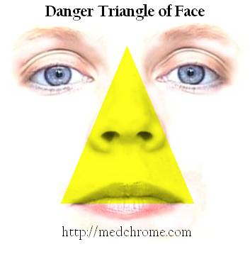 danger triangle of face Danger Triangle of Face and Related Tips