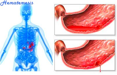 Hematemesis : Peptic ulcer