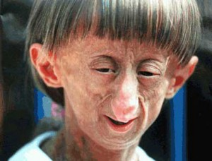 Progeria facies 300x228 Progeria : Aging starts in Childhood
