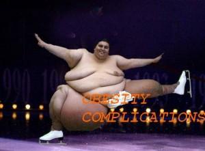 obesity pays