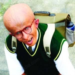 Amitabh Bachchan Progeria Paa