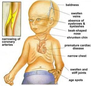 symptoms of progeria