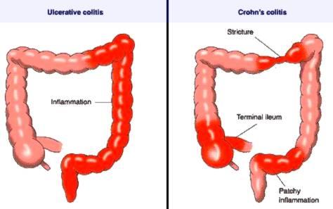 Crohn's disease vs UC