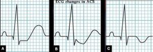 ECG changes in ACS