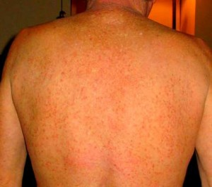 skin rash due to chloramine