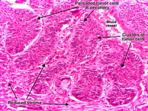 Detailed view of Basal Cell Carcinoma (BCC) histology