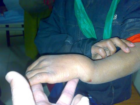 """Dinner Fork Deformity"" in case of Colle's Fracture"