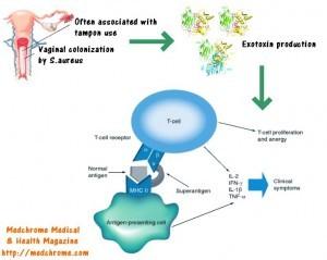 rp_TSS-pathogenesis-300x239.jpg