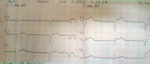 STEMI st elevation ecg 300x129 Case Review : Acute ST Elevation MI