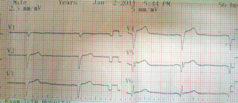 ST elevation in chest leads