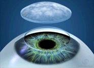 corneal translplant
