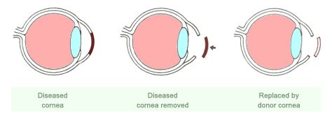 eye donation process