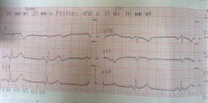 heart attack ecg 300x149 Case Review : Acute ST Elevation MI