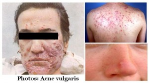 acne pimple skin