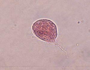 Trichomonas_Vaginalis in microscope