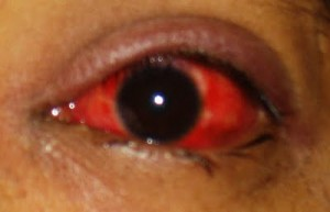 allergic conjuctivitis pink red eye