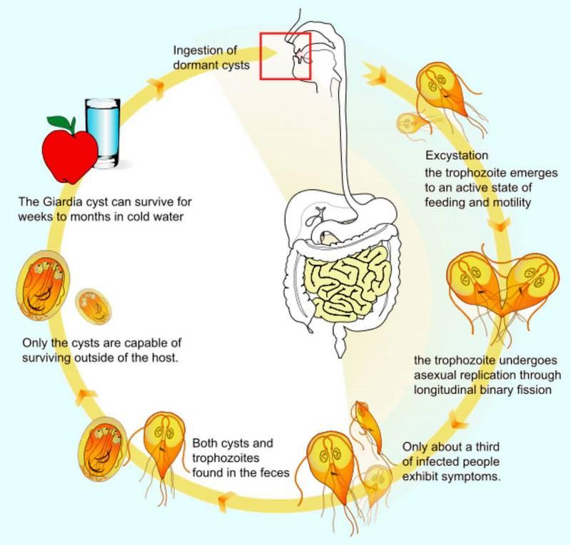 gyomor giardiasis