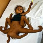 octopus baby 150x150 Medical cases gallery: Rare and severe birth defects