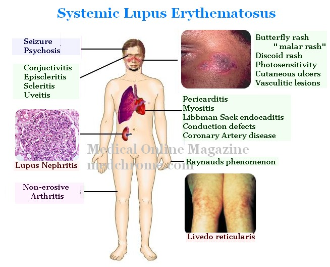 Lupus Treatment Natural Remedies