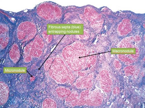 alcoholic cirrhosis microscopy Morphology of Alcoholic Liver Disease