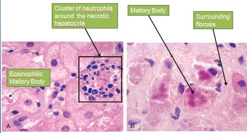 alcoholic hepatits Morphology of Alcoholic Liver Disease