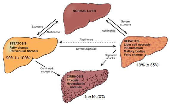 alcoholic liver disease Morphology of Alcoholic Liver Disease
