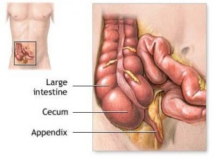 appendix 300x224 Anatomy of Appendix and Appendicitis