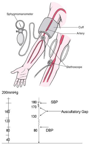 auscultatory gap Auscultatory gap in hypertension