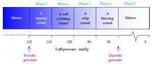 korotkoff sounds