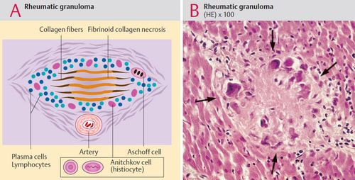Aschoff body Rheumatic Fever and Rheumatic Heart Disease