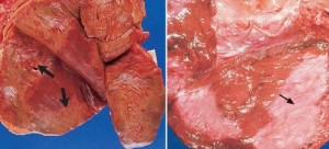Acute: Pale areas of infarction and Old: White fibrous scar