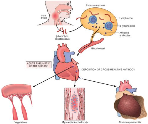 Rheumatic Heart Disease Pathogenesis